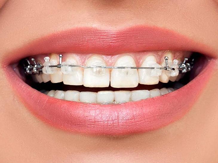 Dettaglio servizio | Ortodonzia