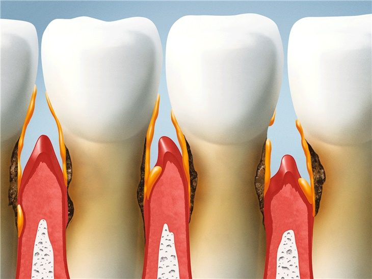 Dettaglio servizio | Parodontologia