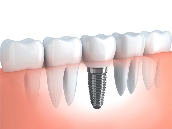 Dettaglio servizio | Implantologia