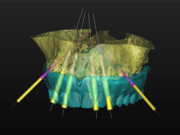 Dettaglio servizio | Implantologia avanzata